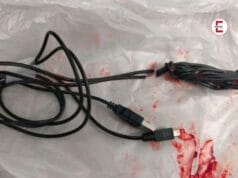 15 year old puts whole USB cable in his penis